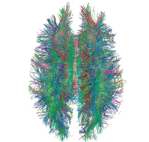 MRI Abbildung